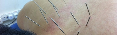 Acupuncture & Bone-Setting – Pain Relief !